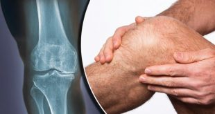 treatment of arthritis, knee pain treatment
