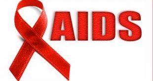 एड्स के लक्षण,कारण और इसके उपचार(aids ke lakshan in hindi)